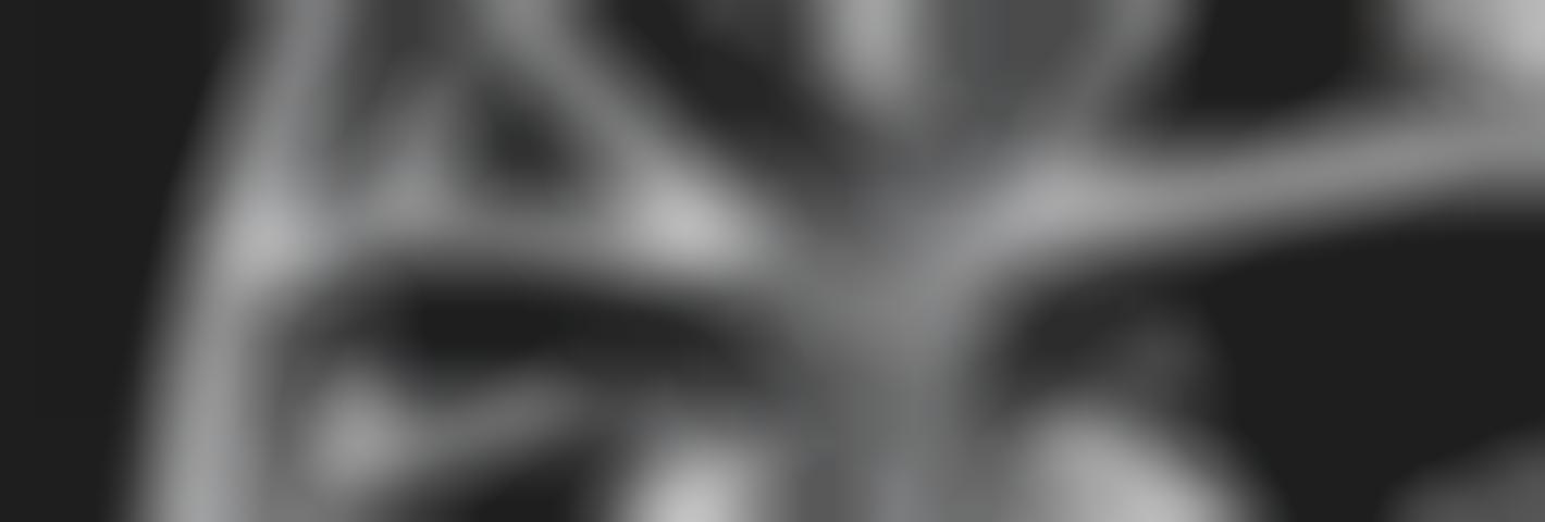 Nieuwe velgen | Velgen laten vervangen | MAK Auto & Techniek
